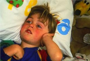 درمان خانگی برای دردهای بچهها