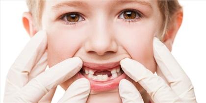 پوسیدگی 5 دندان تجربه هر کودک 6 ساله در کشور