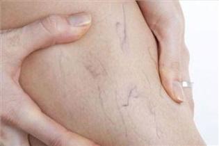 بارداری؛ عامل اصلی واریس