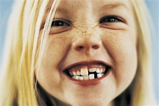 مشکلات دندان قروچه