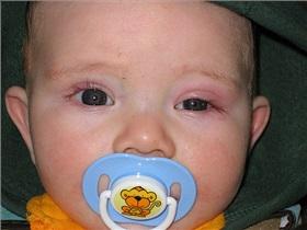 عفونت چشم نوزادان و روشهای درمان آن