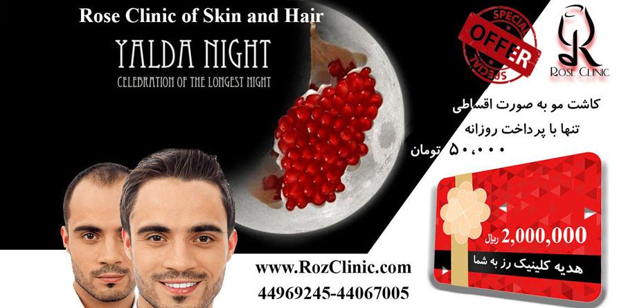 جدیدترین روش کاشت مو در ایران
