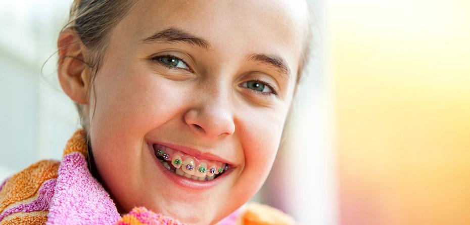 ارتودنسی دندانهای کودک/راز دندانهای سیمپیچی شده!