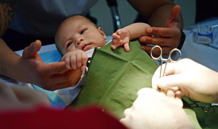 ختنه برای نوزاد پسر