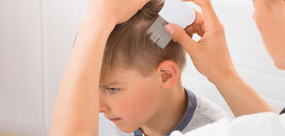 درمان شپش سر با اسپند